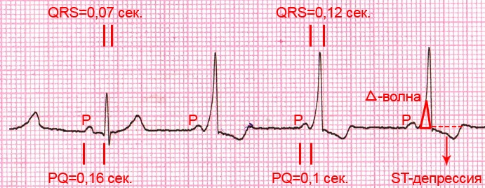 ecg-conduction-abnorm-explained-2