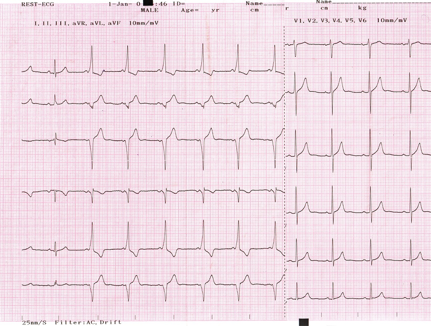 ecg-conduction-abnorm