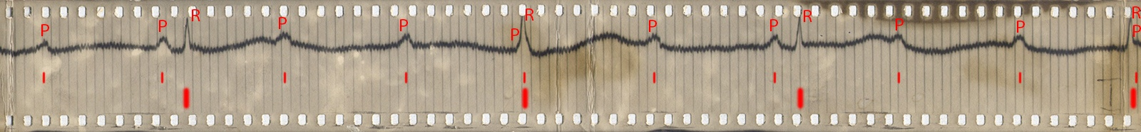 photo ECG explained