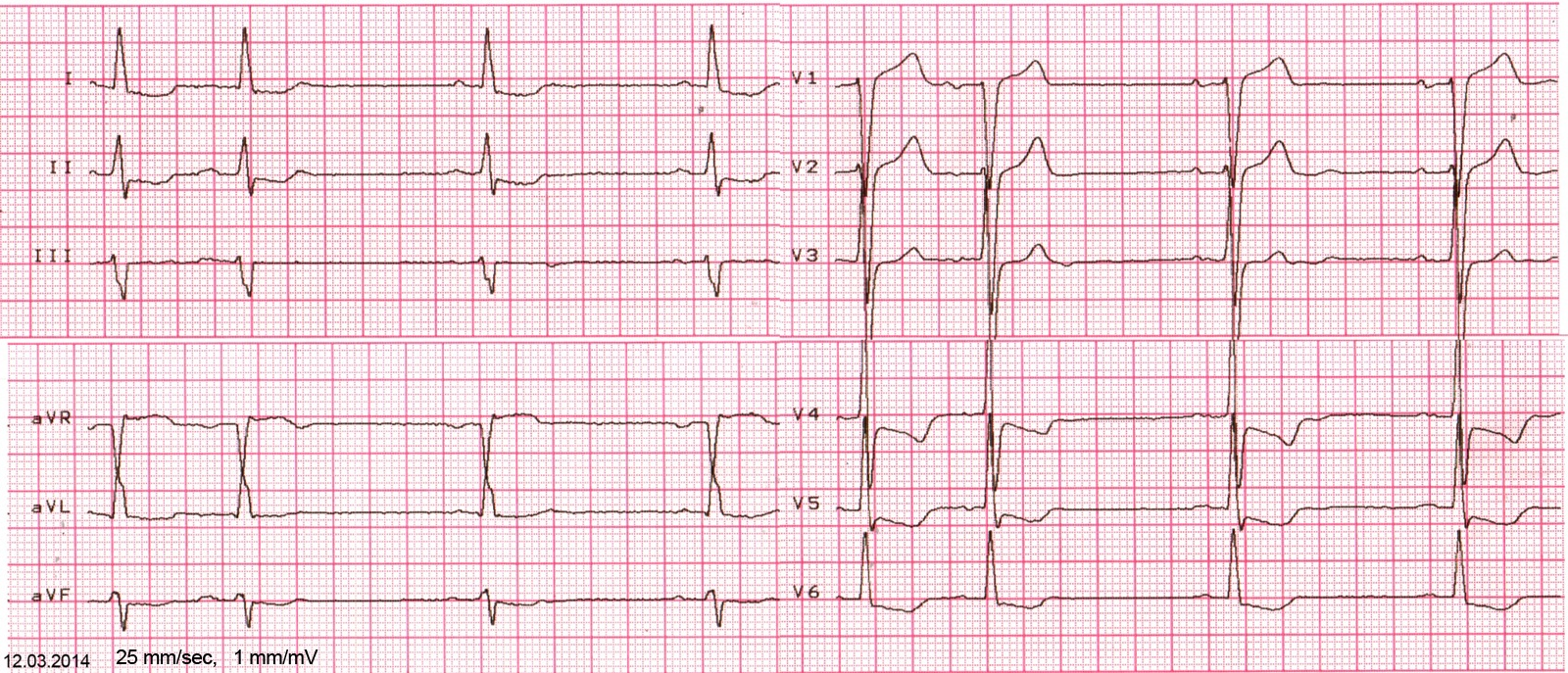 ecg-after
