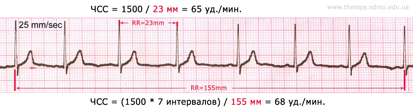 heart-rate-ex0-rus