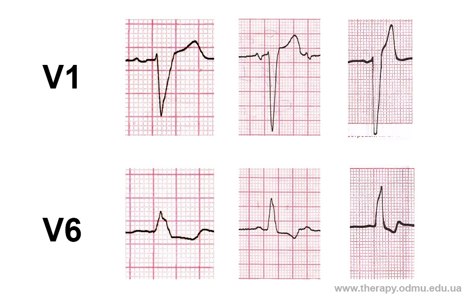 lbbb-examples
