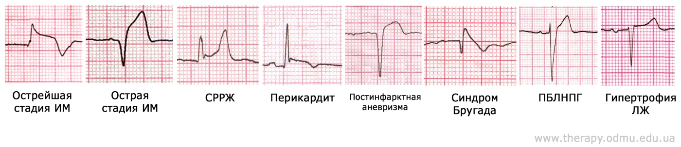 st-elevation-types-rus