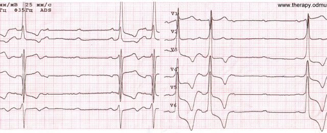 ECG of patient with RBBB + LBBB