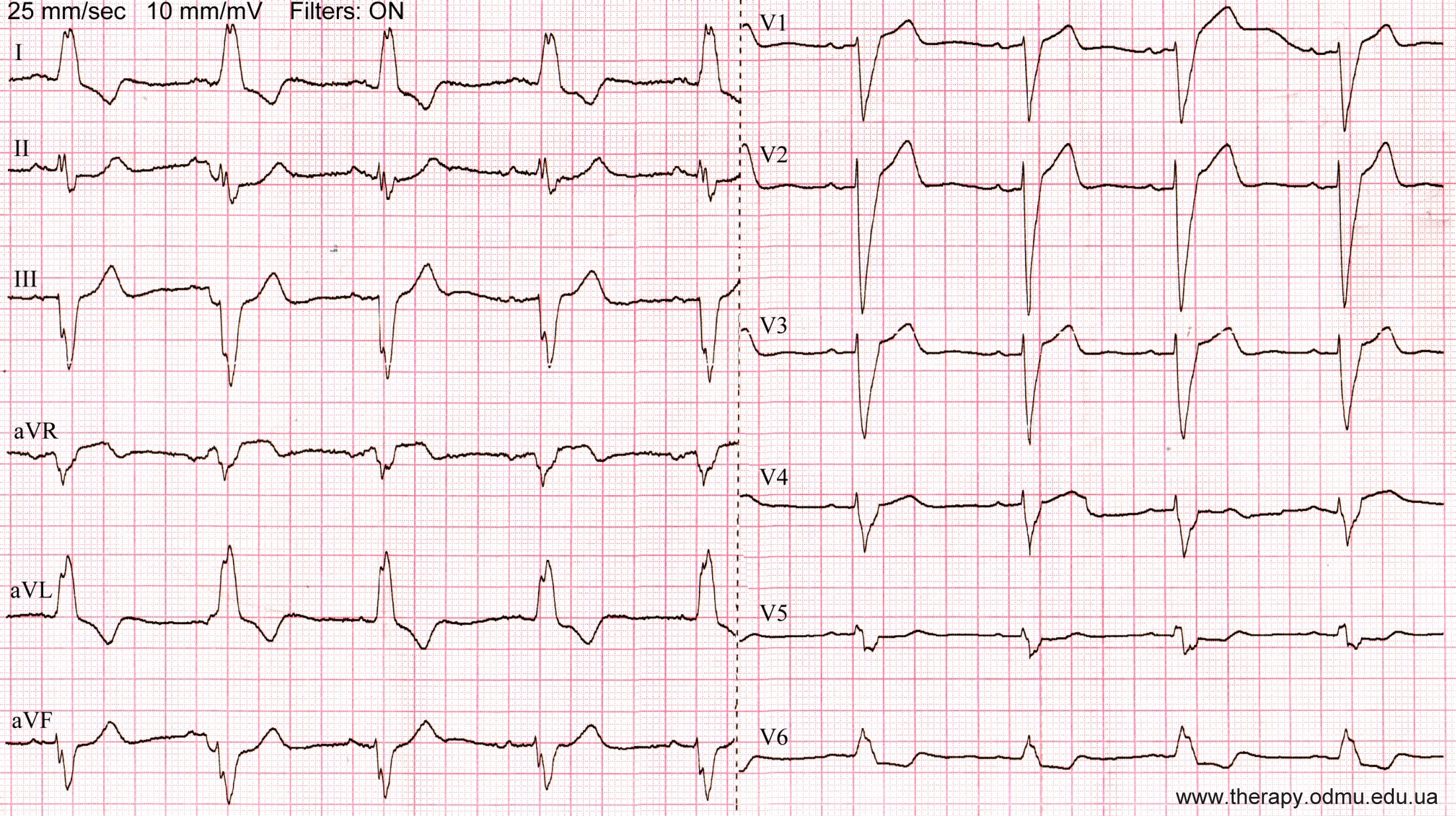 complete-lbbb