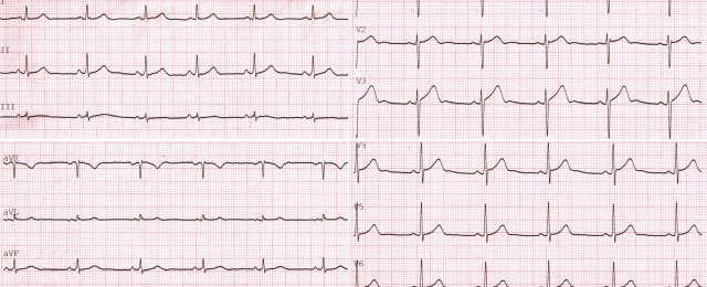 ECG of a healthy person,STANDART + CHEST LEADS