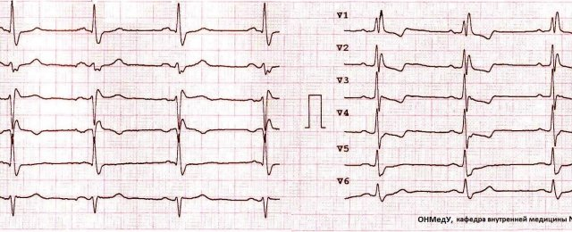Right bundle branch block, left anterior bundle branch block, hypertrophy of RV
