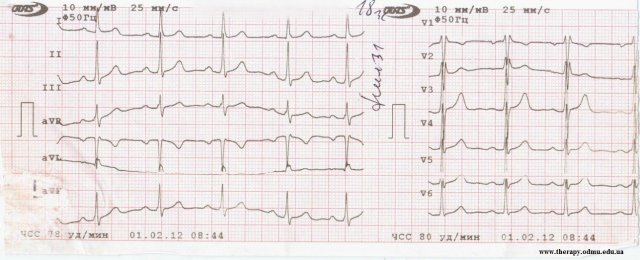 Incomplete RBBB