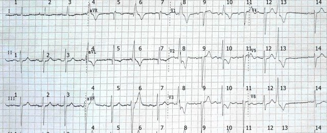 AV block I degree. Aberrant conduct of right bundle branch block. ventricular extrasystole