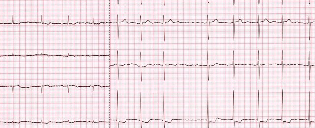 Atrial fibrillation. Signs of left ventricular hypertrophy
