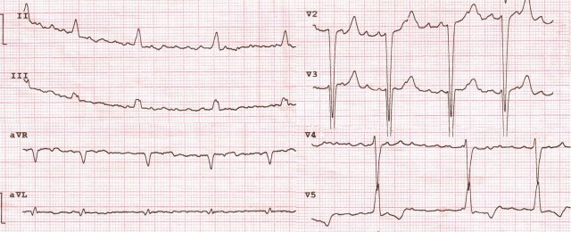 "Atrial fibrillation (Large waves), Normosystolic varient . ""LBBB""  & Scar"