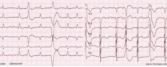Atrial fibrillation, frequent ventricular premature beats (extrasystole)