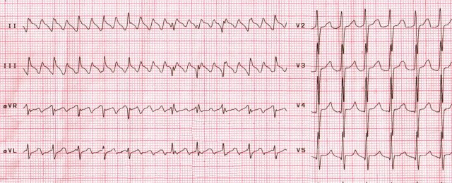 Atrial flutter, changing of electrical axis of heart during breathing