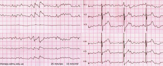 Artifact record pretending to ventricular fibrillation or flutter
