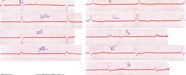 Frederick Syndrome (atrial fibrillation + AV-block 3rd degree .)