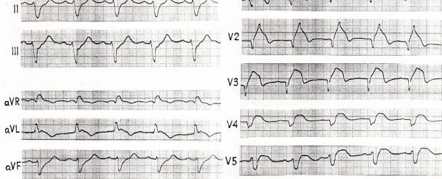 Bi-fascicular Block (both bundle branch block  = LBBB+RBBB)
