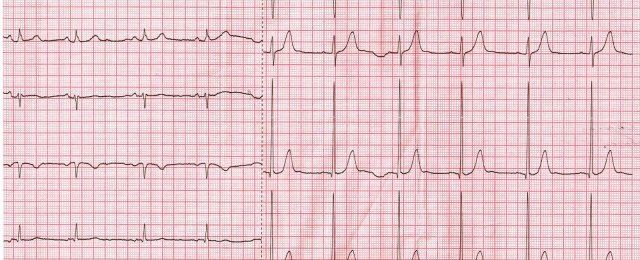 ECG after resection of the lower lobe of the left lung