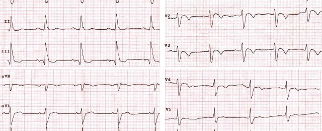 Left posterior fascicular block + RBBB, unstable angina