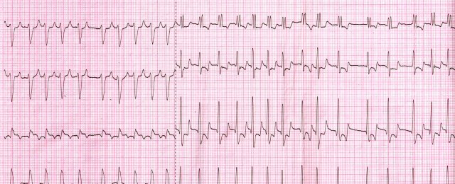 Atrial fibrillation. Signs of right ventricular hypertrophy