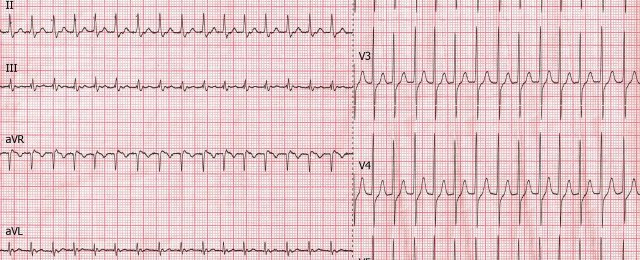 Supraventricular Extrasystole of a young woman